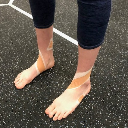 A dancer's feet wrapped in athletic tape.
